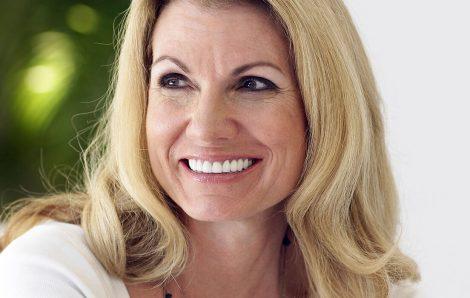 Florida dentist explains the purpose of a dental implant