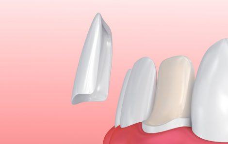 Things You Should Know Before Getting Dental Veneers